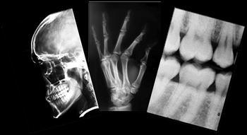 X-Ray Copies